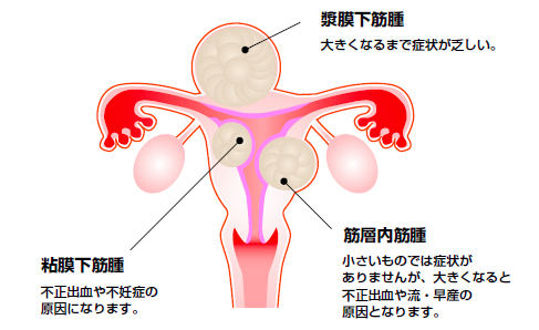 (出典:日本産科婦人科学会)