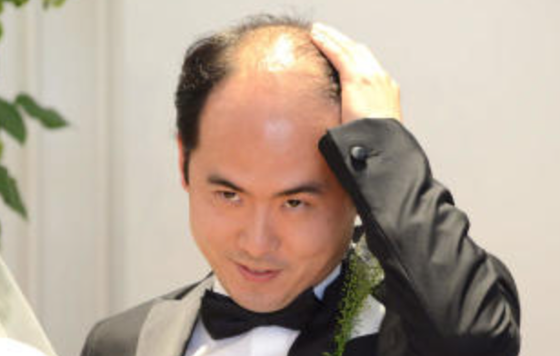 斎藤さん、ハゲ、不毛