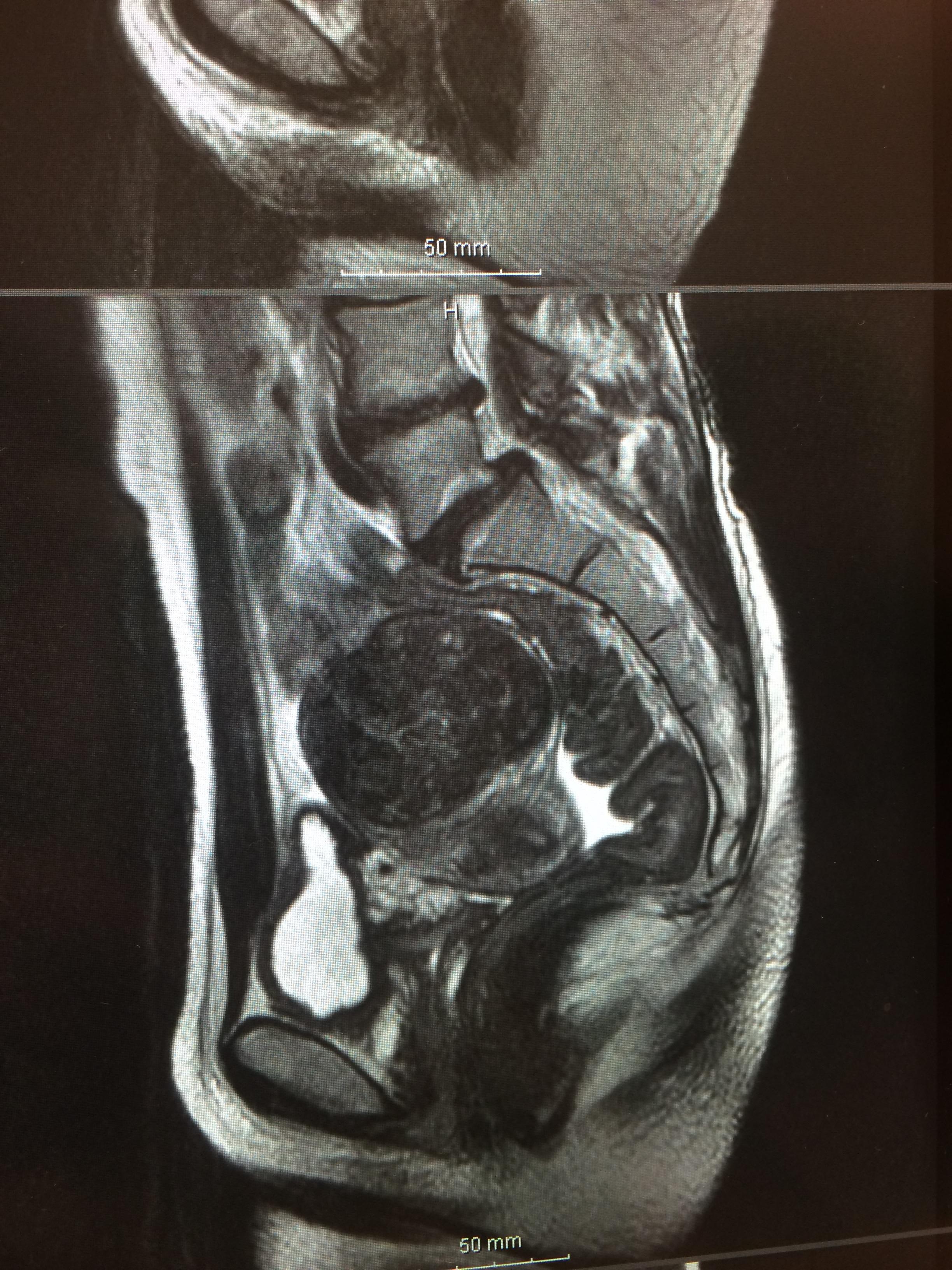 MRI、子宮筋腫