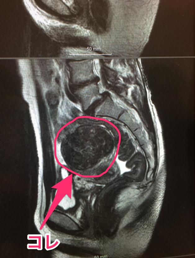 漿膜下子宮筋腫、エコー写真、レントゲン