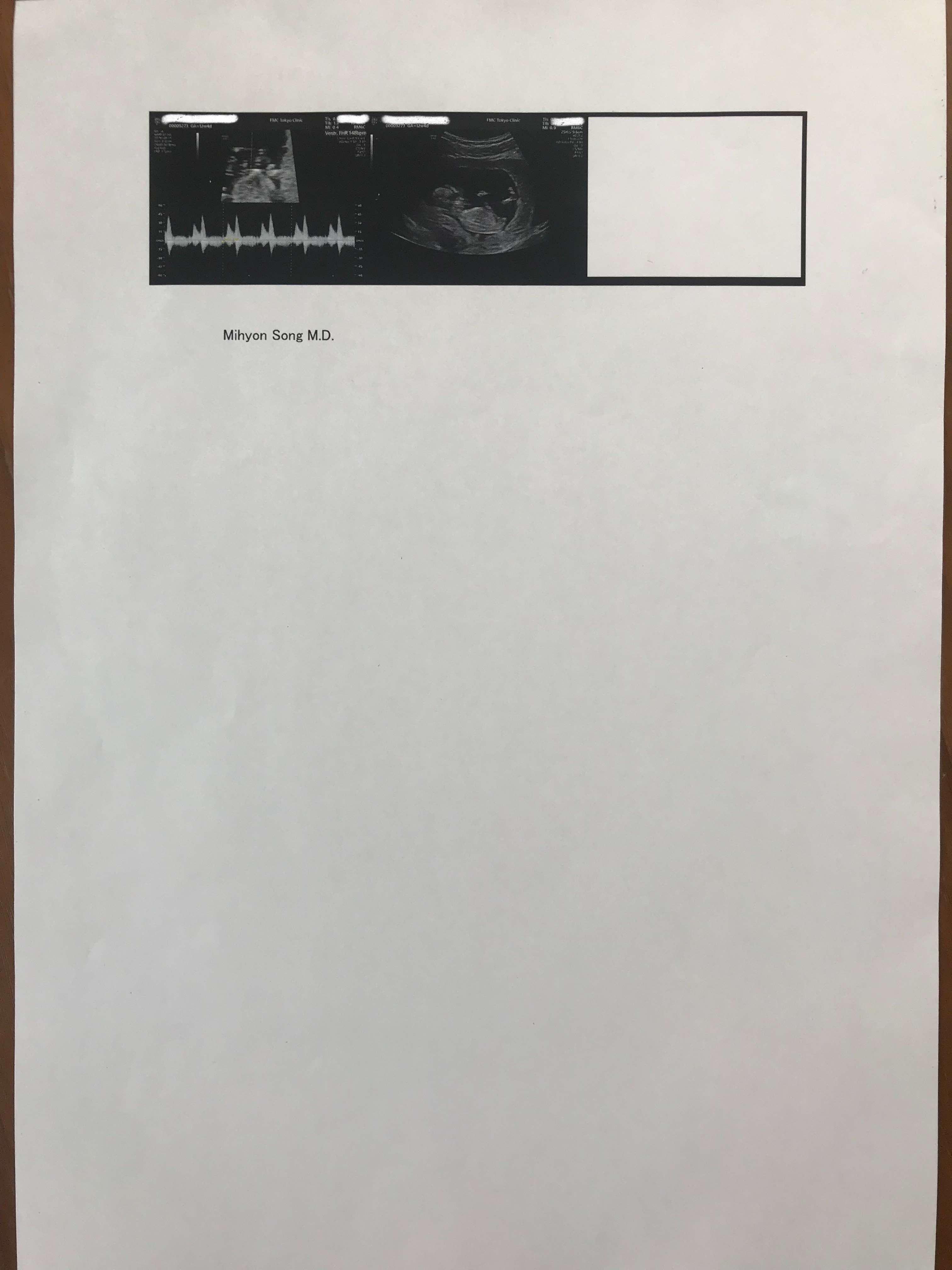 FMC東京クリニック コンバインドプラス検査 胎児ドック