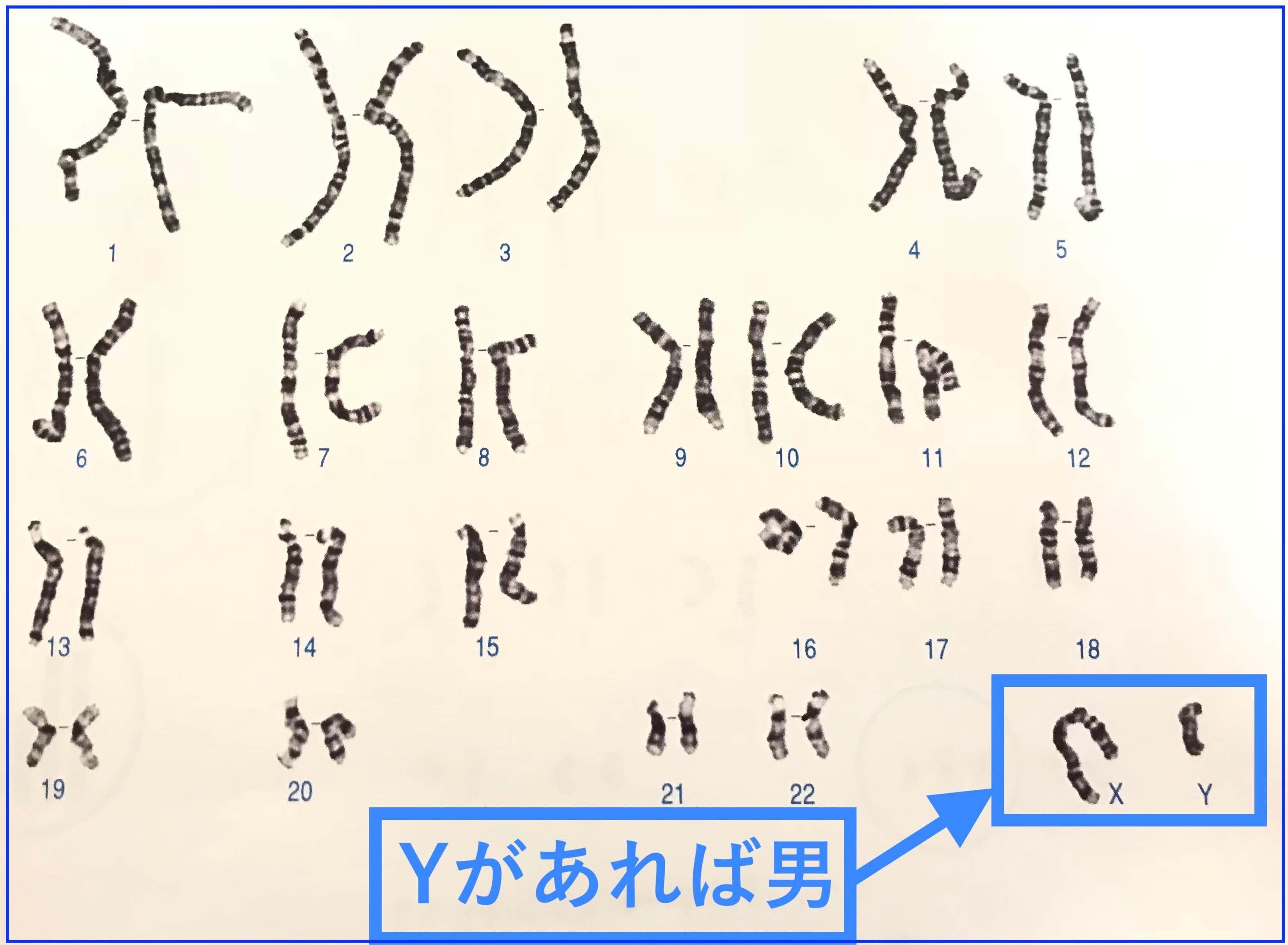 FMC東京クリニック コンバインド検査 胎児ドック