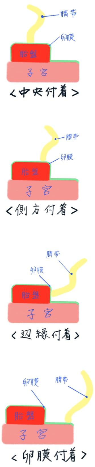 臍帯付着位置(中央、側方、近縁、卵膜)